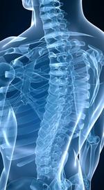 röntgenaufnahme des rückens